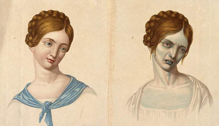 portrait of a woman before and after tuberculosis